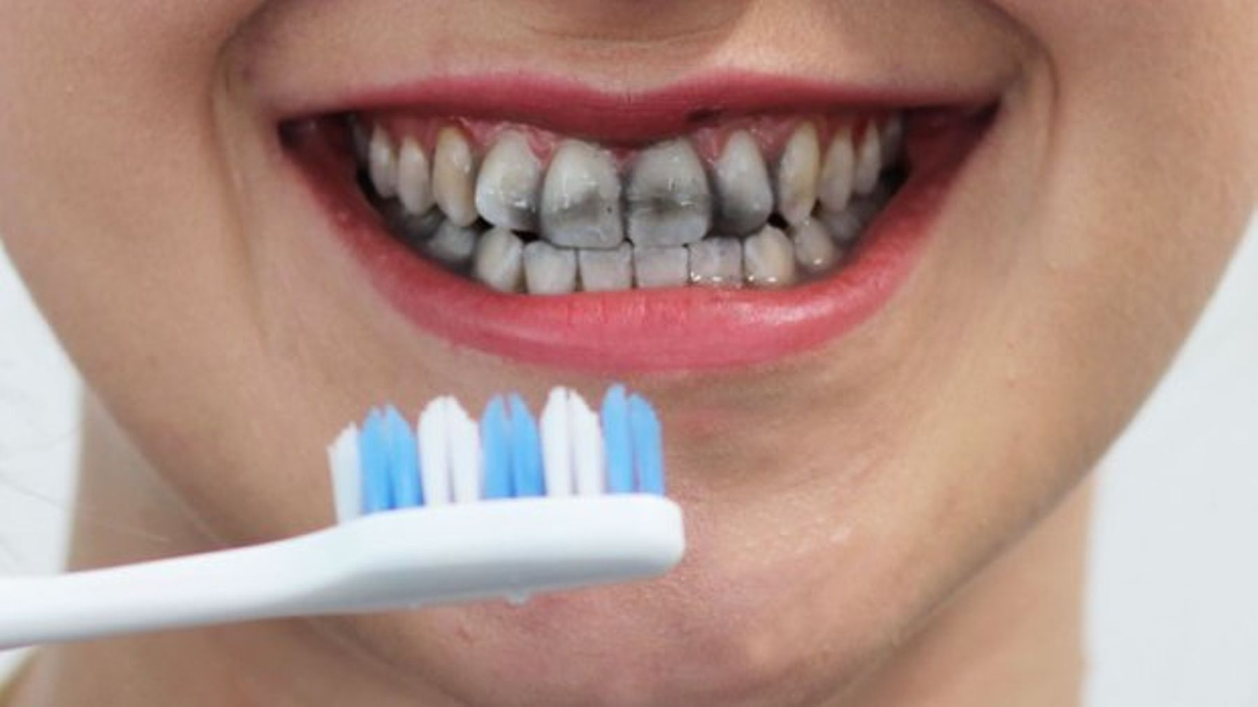 How to Naturally Whiten Your Teeth?